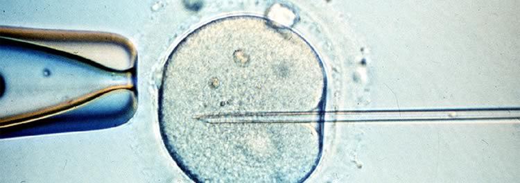 ¿Ser abuelo por fecundación in vitro (FIV)?