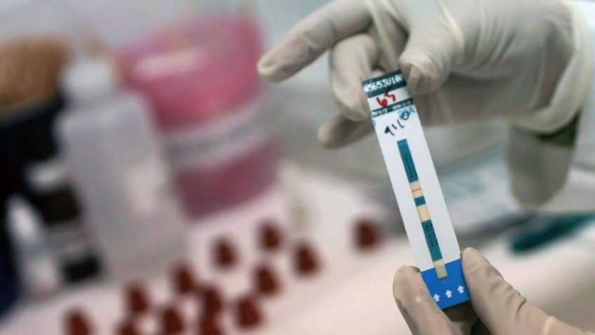 Curar el SIDA con células madre
